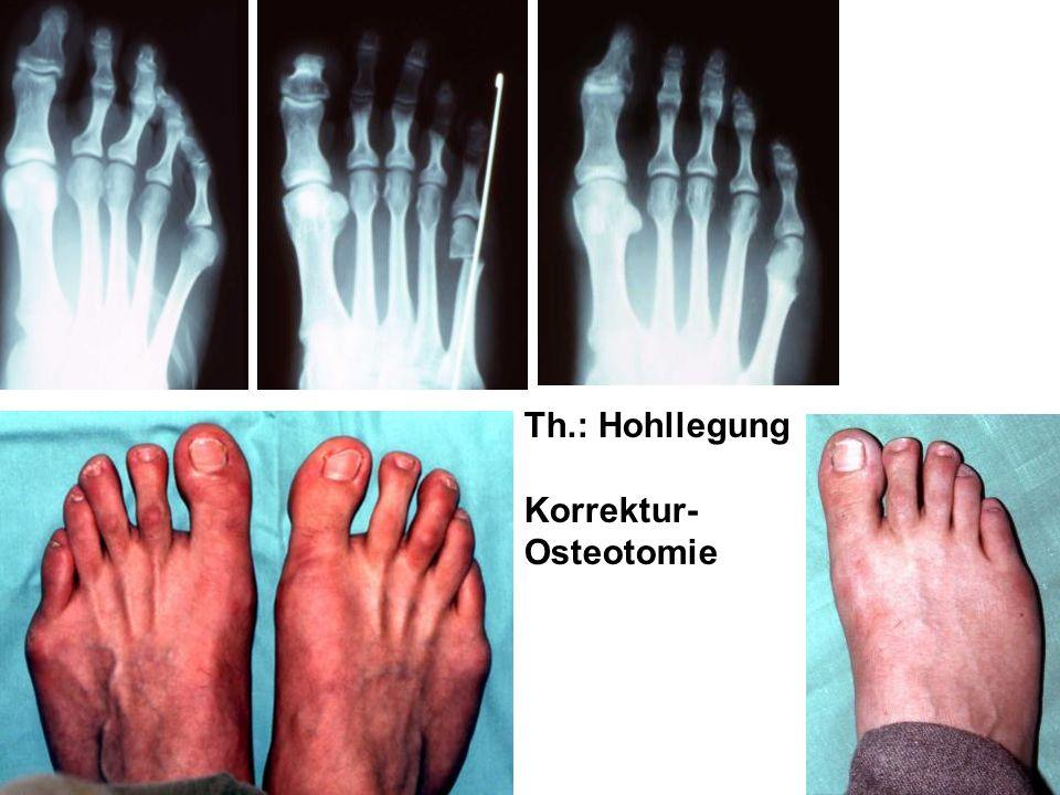 Th.: Hohllegung Korrektur- Osteotomie