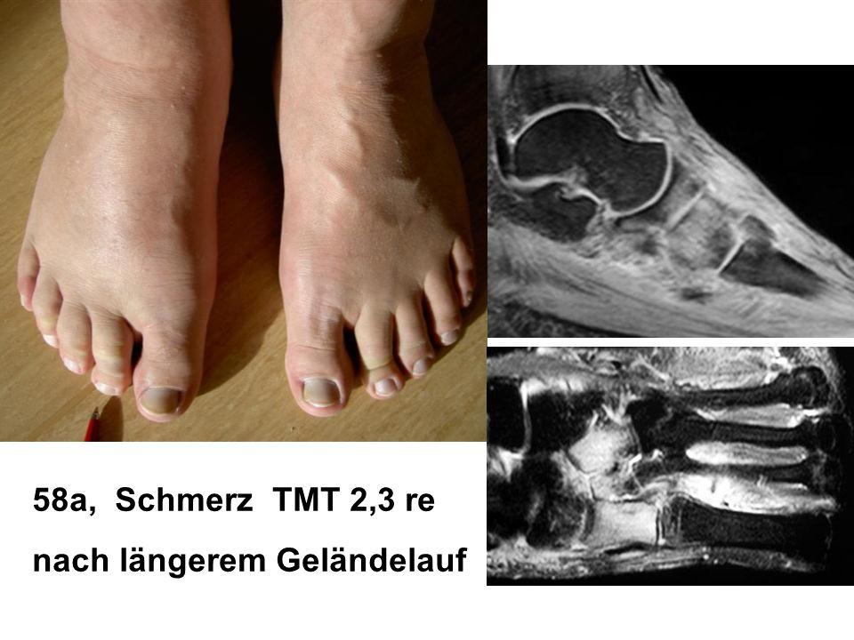 58a, Schmerz TMT 2,3 re nach längerem Geländelauf