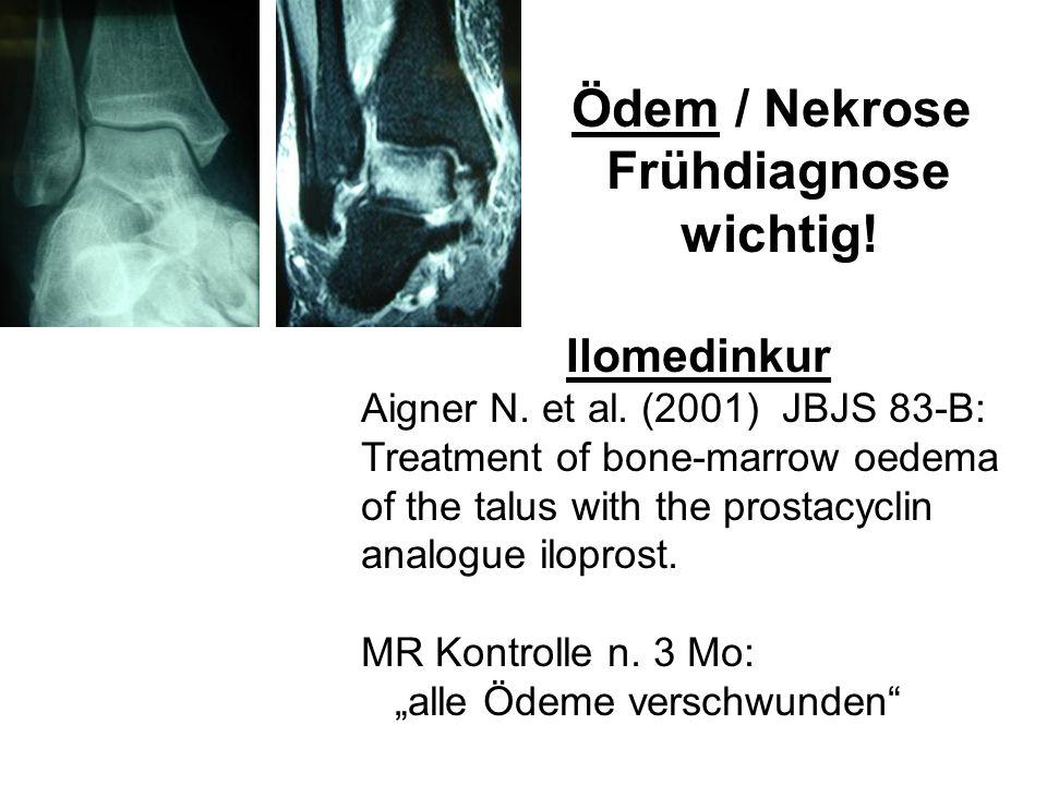 Ödem / Nekrose Frühdiagnose wichtig! Ilomedinkur Aigner N. et al. (2001) JBJS 83-B: Treatment of bone-marrow oedema of the talus with the prostacyclin
