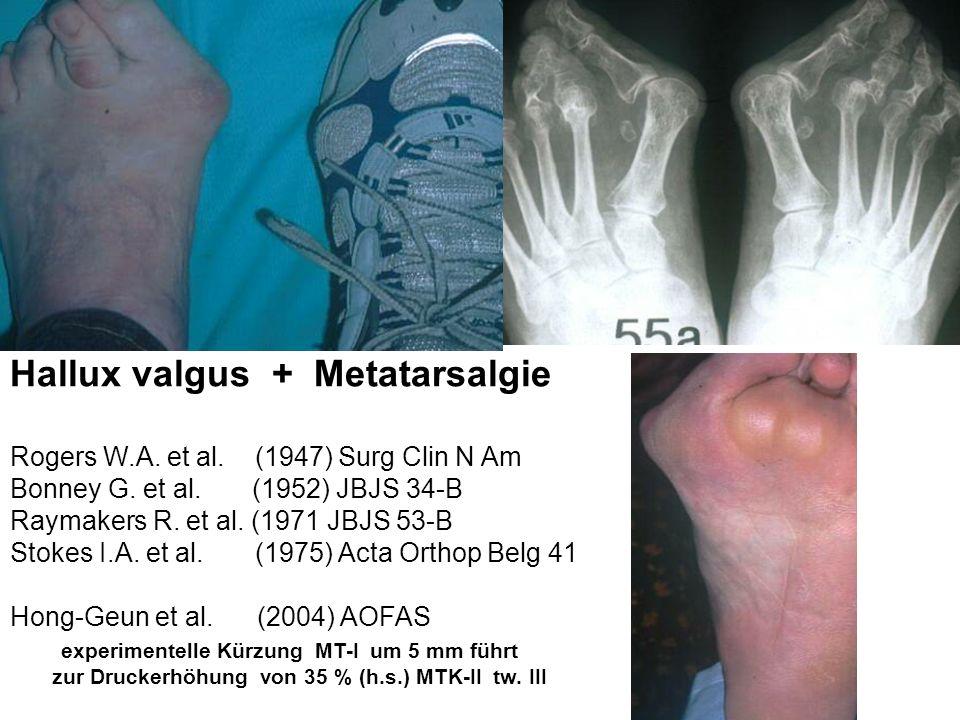 Ermüdungsbruch der Metatarsalia Breithaupt M.(1855) Med.Zeit.