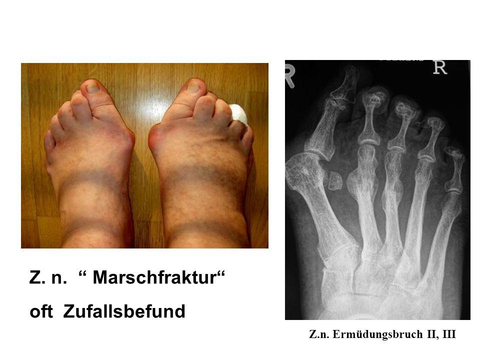 56a seit 2 Wochen nach Joggen Schmerz und Schwellung Metatarsale 3 links