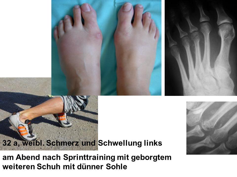 32 a, weibl. Schmerz und Schwellung links am Abend nach Sprinttraining mit geborgtem weiteren Schuh mit dünner Sohle