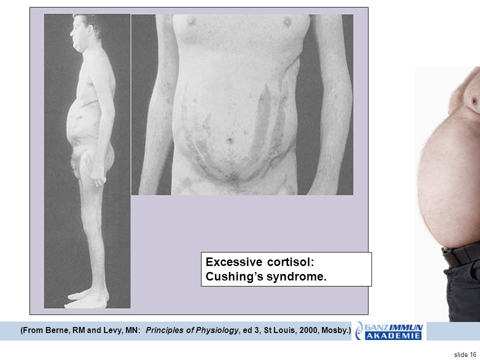 slide 16 Cushings pic-2 (From Berne, RM and Levy, MN: Principles of Physiology, ed 3, St Louis, 2000, Mosby.) Excessive cortisol: Cushings syndrome.