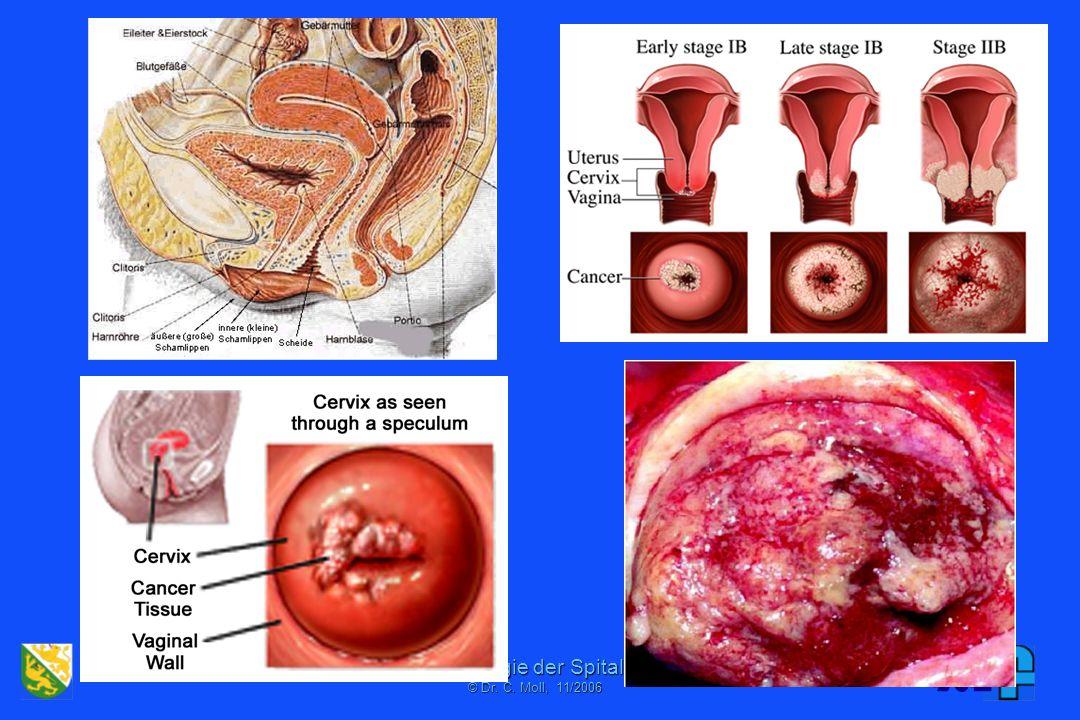 Institut für Pathologie der Spital Thurgau AG © Dr. C. Mol, 06/2001 Ein Produkt erhöhter Sensitivität: ASCUS/AGUS
