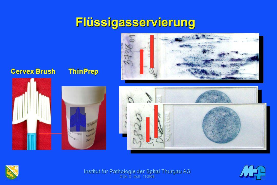 Institut für Pathologie der Spital Thurgau AG © Dr. C. Mol, 06/2001 ThinPrep® -Aspirationsfiltration -Slide Transfer