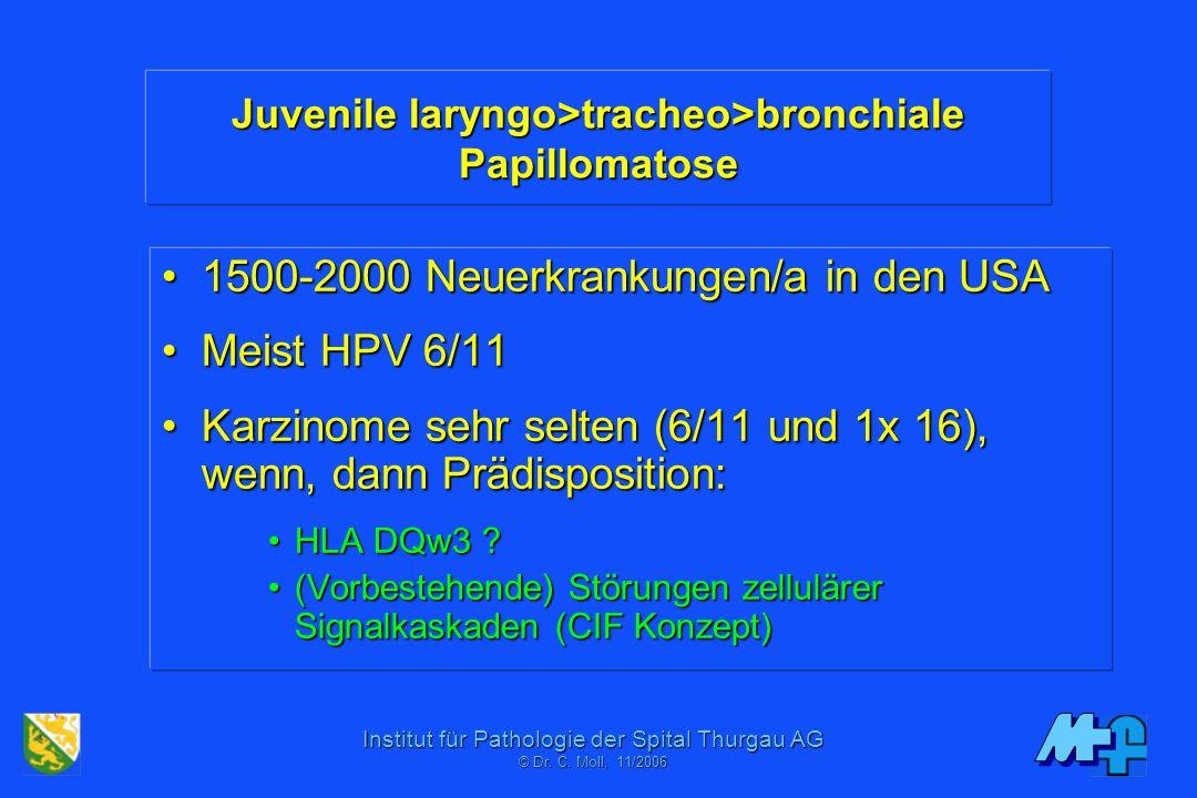 Institut für Pathologie der Spital Thurgau AG © Dr. C. Mol, 06/2001 HPV Typen HPV 6/11 -> Genitale Warzen, laryngeale Papillome HPV 16/18 /31/33/35/39