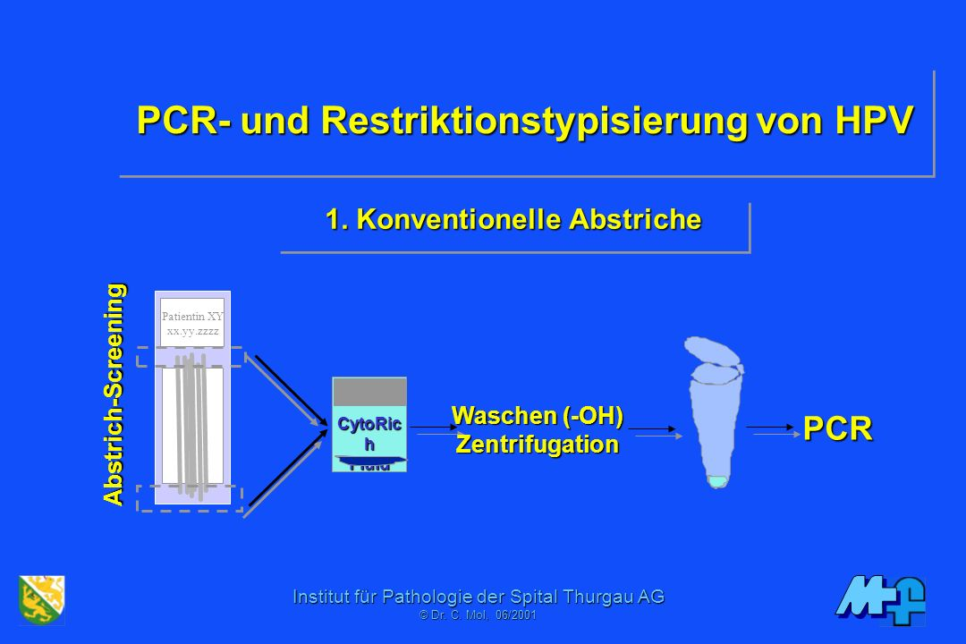 Institut für Pathologie der Spital Thurgau AG © Dr. C. Mol, 06/2001 Koilozytose:>Doppelkernigkeit>Scharfrandigkeit >Perinukleärer Hof Proliferation:In