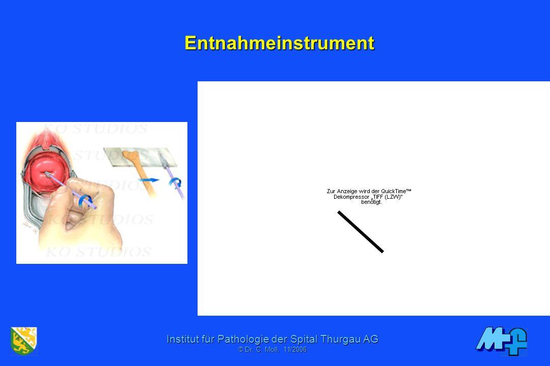Institut für Pathologie der Spital Thurgau AG © Dr. C. Mol, 06/2001 PAP Screening Figures (CH), (+/- Schätzungen) 2 Millionen Frauen (1,2 Mio PAPs 99)