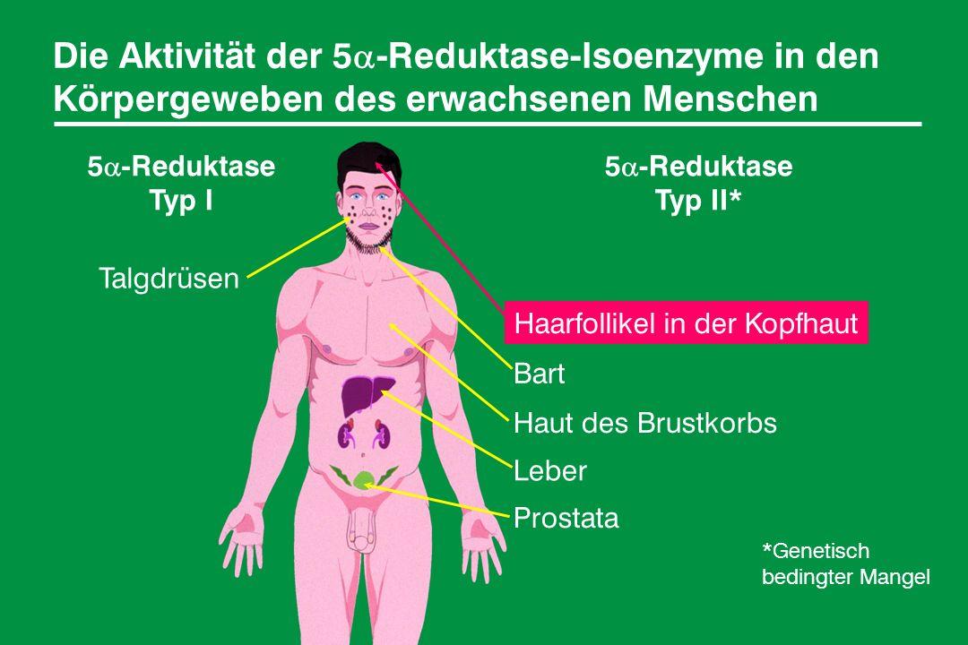 Die Aktivität der 5 -Reduktase-Isoenzyme in den Körpergeweben des erwachsenen Menschen 5 -Reduktase Typ I 5 -Reduktase Typ II* Talgdrüsen Haarfollikel in der Kopfhaut Bart Haut des Brustkorbs Leber Prostata *Genetisch bedingter Mangel