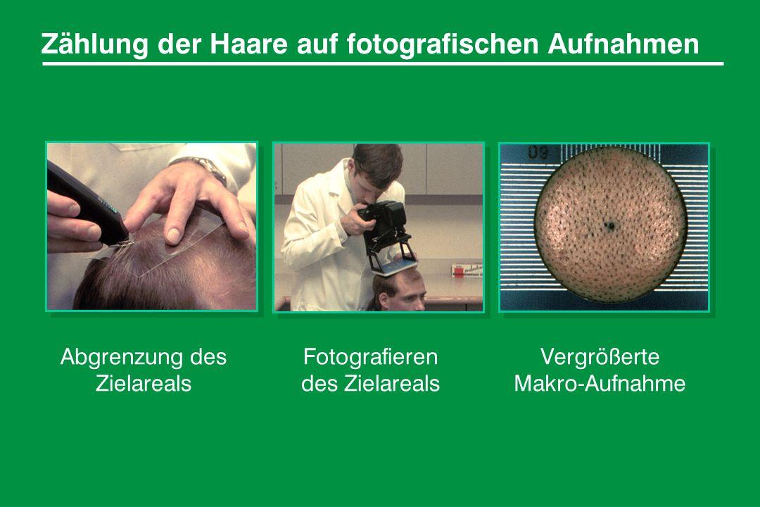 Zählung der Haare auf fotografischen Aufnahmen Abgrenzung des Zielareals Fotografieren des Zielareals Vergrößerte Makro-Aufnahme