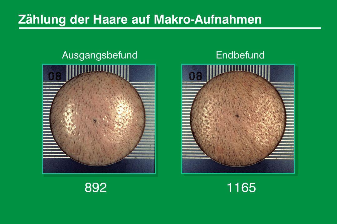 Zählung der Haare auf Makro-Aufnahmen 8921165 AusgangsbefundEndbefund