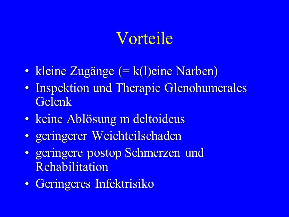 Vorteile kleine Zugänge (= k(l)eine Narben)kleine Zugänge (= k(l)eine Narben) Inspektion und Therapie Glenohumerales GelenkInspektion und Therapie Gle