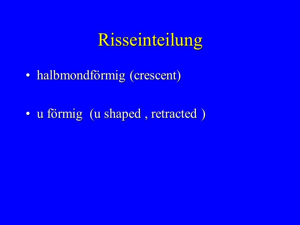 Risseinteilung halbmondförmig (crescent)halbmondförmig (crescent) u förmig (u shaped, retracted )u förmig (u shaped, retracted )