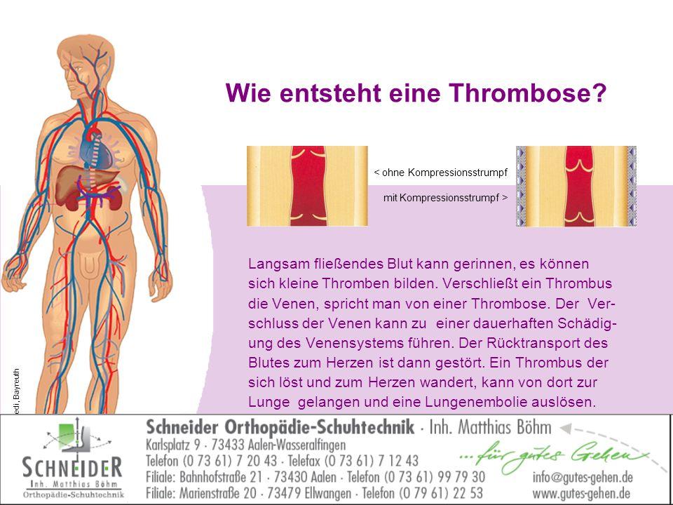 Wie entsteht eine Thrombose? Langsam fließendes Blut kann gerinnen, es können sich kleine Thromben bilden. Verschließt ein Thrombus die Venen, spricht