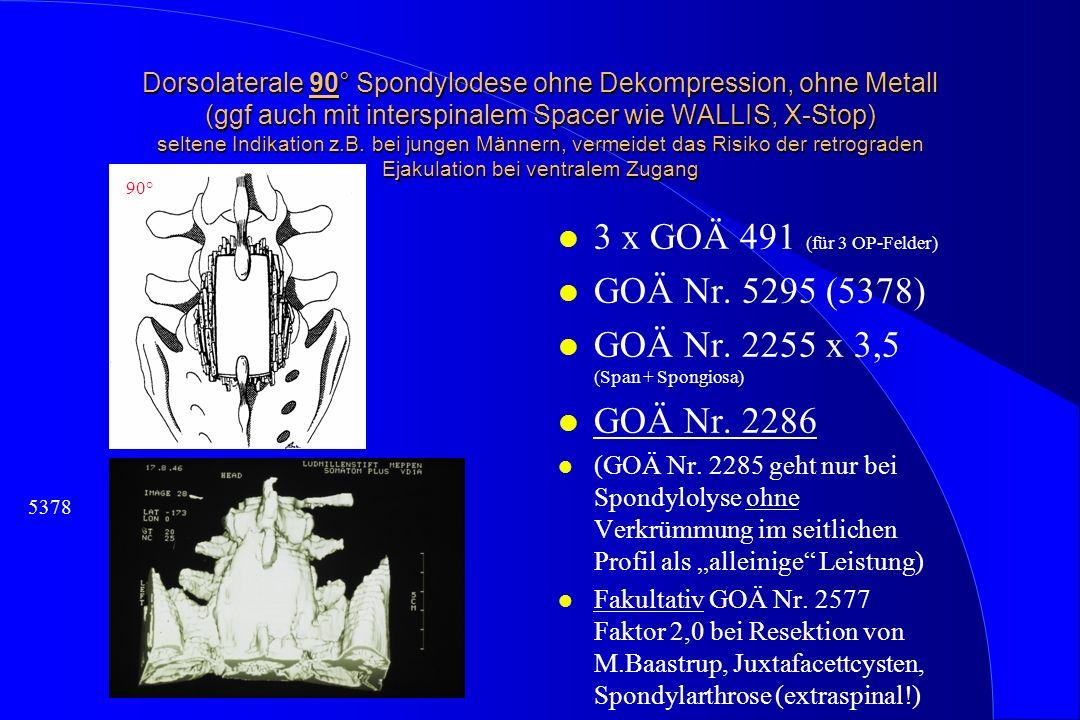 Dorsolaterale 90° Spondylodese ohne Dekompression, ohne Metall (ggf auch mit interspinalem Spacer wie WALLIS, X-Stop) seltene Indikation z.B. bei jung