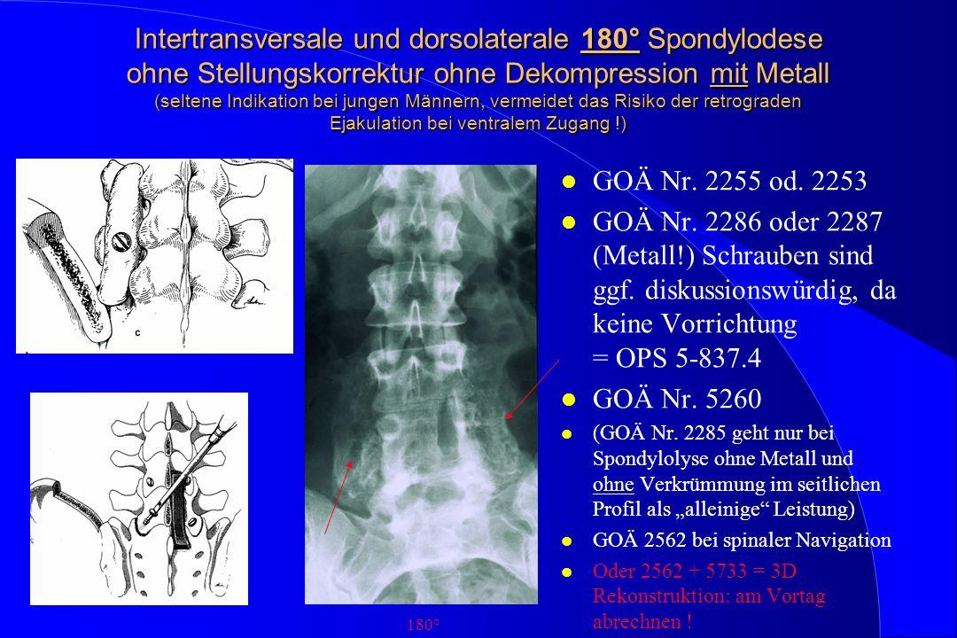 Intertransversale und dorsolaterale 180° Spondylodese ohne Stellungskorrektur ohne Dekompression mit Metall (seltene Indikation bei jungen Männern, ve