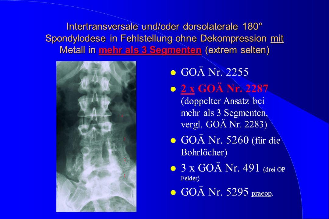 Intertransversale und/oder dorsolaterale 180° Spondylodese in Fehlstellung ohne Dekompression mit Metall in mehr als 3 Segmenten (extrem selten) l GOÄ