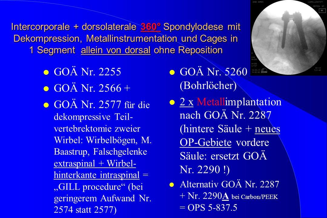 Intercorporale + dorsolaterale 360° Spondylodese mit Dekompression, Metallinstrumentation und Cages in 1 Segment allein von dorsal ohne Reposition l GOÄ Nr.