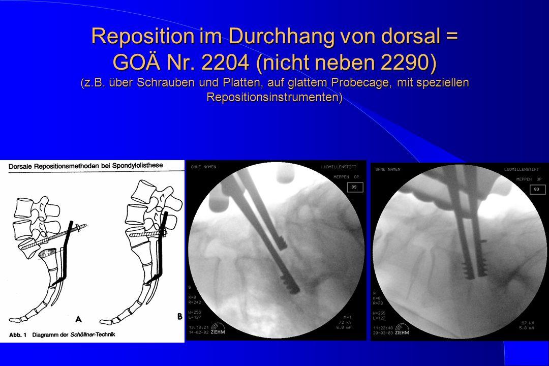 Reposition im Durchhang von dorsal = GOÄ Nr. 2204 (nicht neben 2290) (z.B. über Schrauben und Platten, auf glattem Probecage, mit speziellen Repositio