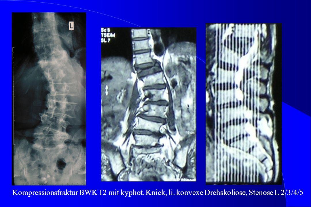 Kompressionsfraktur BWK 12 mit kyphot. Knick, li. konvexe Drehskoliose, Stenose L 2/3/4/5