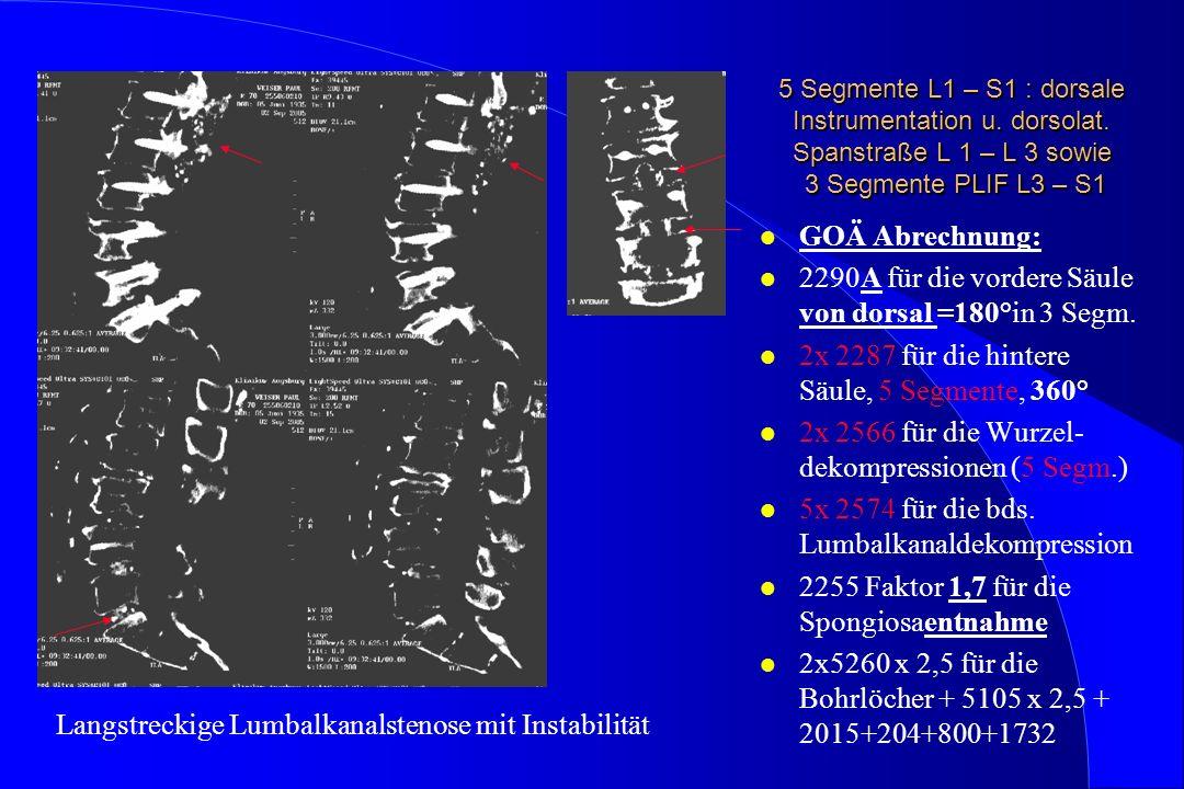 5 Segmente L1 – S1 : dorsale Instrumentation u. dorsolat. Spanstraße L 1 – L 3 sowie 3 Segmente PLIF L3 – S1 l GOÄ Abrechnung: l 2290A für die vordere