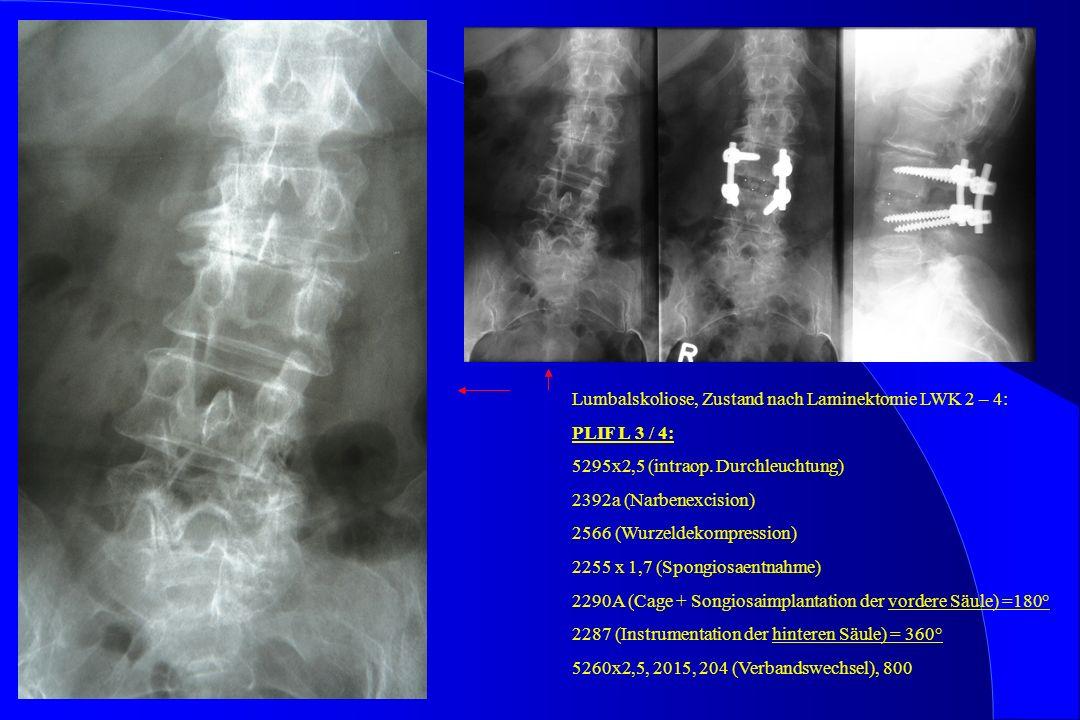 Lumbalskoliose, Zustand nach Laminektomie LWK 2 – 4: PLIF L 3 / 4: 5295x2,5 (intraop. Durchleuchtung) 2392a (Narbenexcision) 2566 (Wurzeldekompression