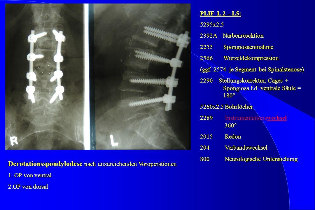 Derotationsspondylodese nach unzureichenden Voroperationen 1. OP von ventral 2.OP von dorsal PLIF L 2 – L5: 5295x2,5 2392A Narbenresektion 2255 Spongi