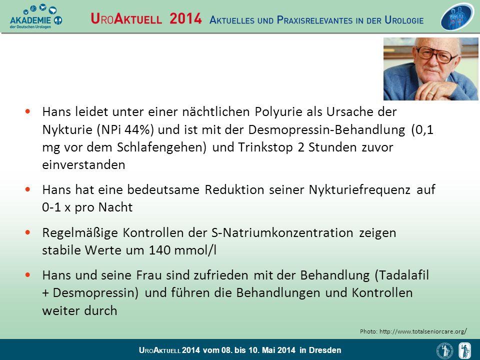 U RO A KTUELL 2014 vom 08. bis 10. Mai 2014 in Dresden Hans leidet unter einer nächtlichen Polyurie als Ursache der Nykturie (NPi 44%) und ist mit der