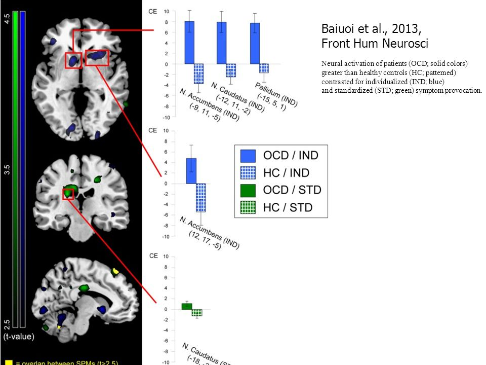 Baiuoi et al., 2013, Front Hum Neurosci Neural activation of patients (OCD; solid colors) greater than healthy controls (HC; patterned) contrasted for individualized (IND; blue) and standardized (STD; green) symptom provocation..