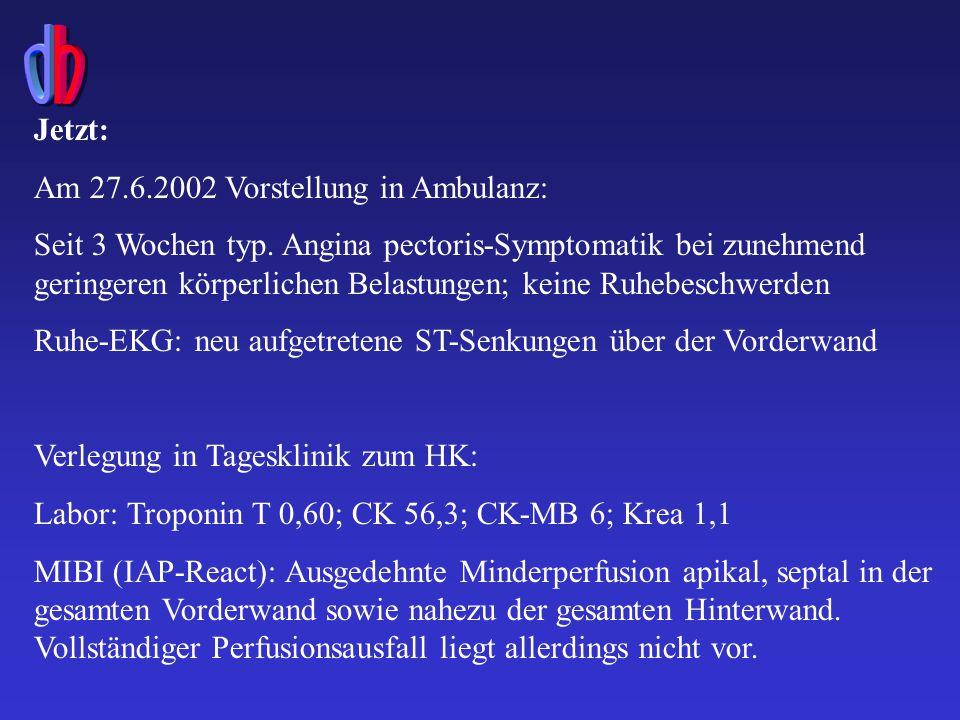 Im HK vom 27.6.2002: PTCA/Stenting hochgradiger Stenosen im Bereich des Hauptstammes (75%), der LAD (90%ige Restenose) und LCX (75%) bei Koronarer 3-Gefäßerkrankung mit reduzierter LV-Funktion (EF 40%)