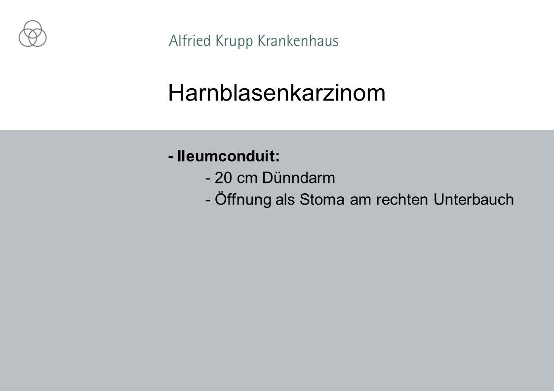 - Ileumconduit: - 20 cm Dünndarm - Öffnung als Stoma am rechten Unterbauch Harnblasenkarzinom