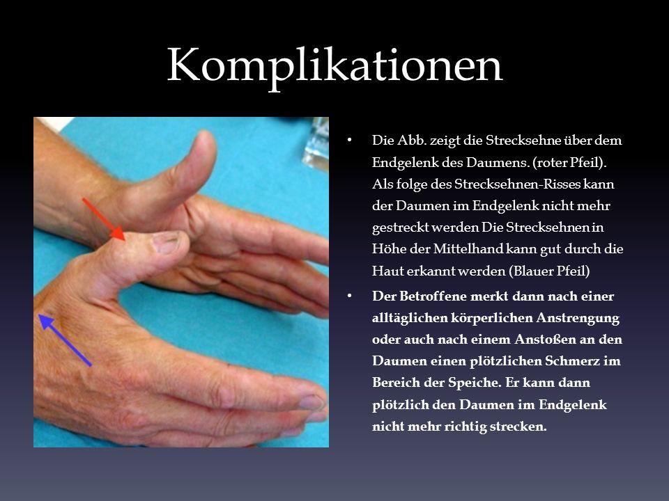 Komplikationen Die Abb. zeigt die Strecksehne über dem Endgelenk des Daumens. (roter Pfeil). Als folge des Strecksehnen-Risses kann der Daumen im Endg