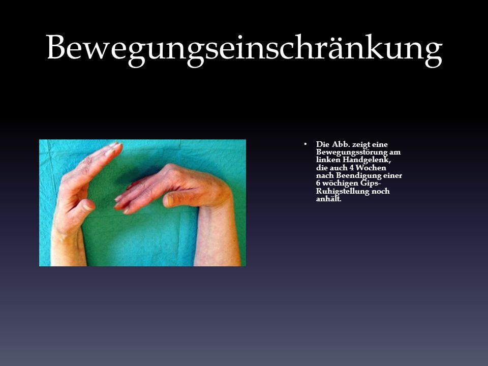 Bewegungseinschränkung Die Abb. zeigt eine Bewegungsstörung am linken Handgelenk, die auch 4 Wochen nach Beendigung einer 6 wöchigen Gips- Ruhigstellu