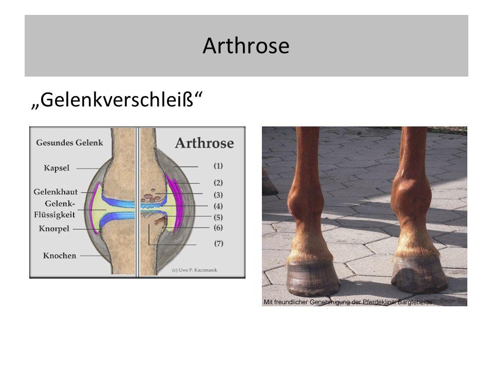Arthrose allgemein Primäre Arthrose Keine Grundkrankheit Sekundäre Arthrose: Folge eines angeborenen oder erworbenen Schadens (Hüftdysplasie, posttraumatisch, Instabilität) Arthritis / aktivierte Arthrose