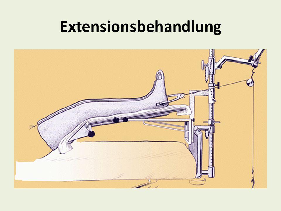 Extensionsbehandlung