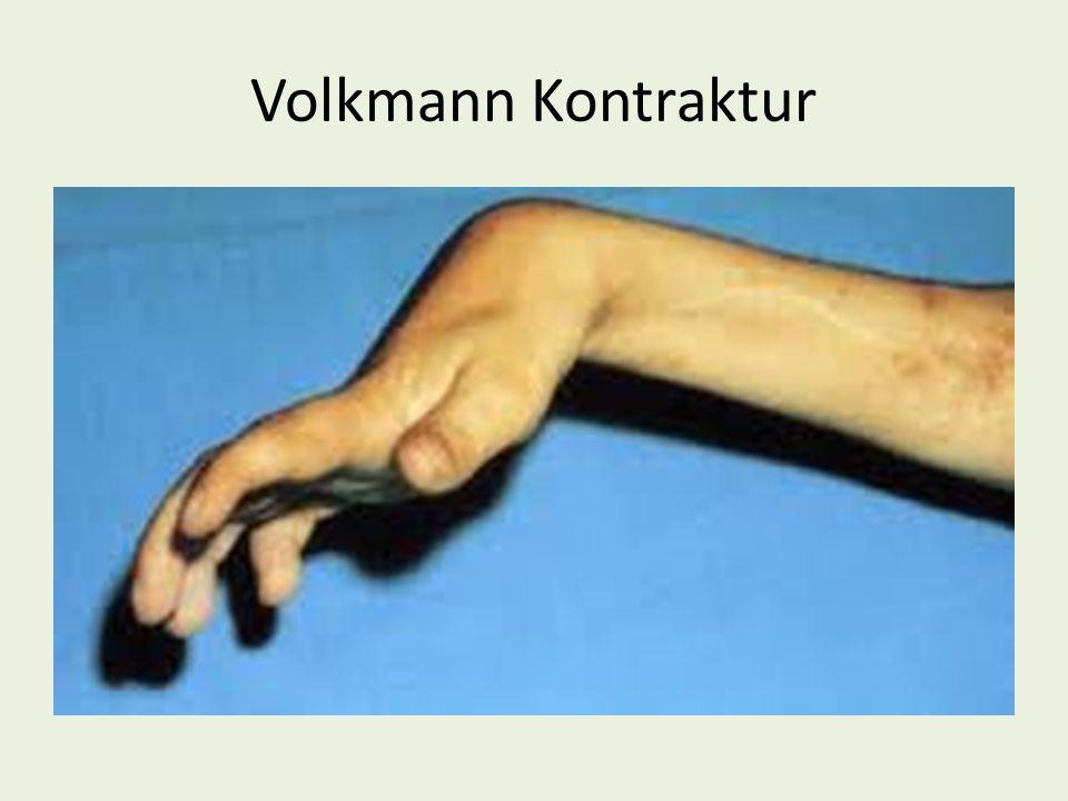 Volkmann Kontraktur