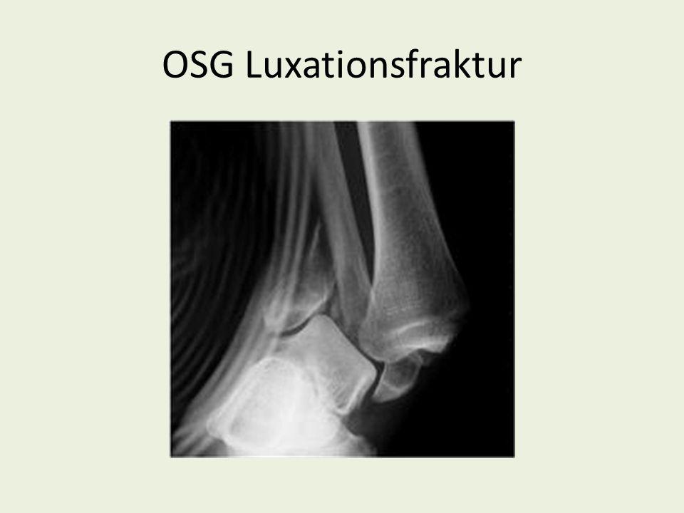 Bei allen Verletzungen dieser Art kann auch der Knorpel mit betroffen sein - Abscherungen -osteochondrale Fragmente - Knorpelfissur -Impressionen