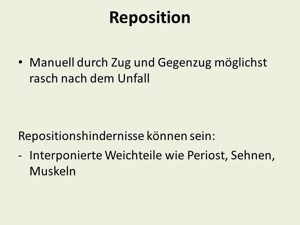 Reposition Manuell durch Zug und Gegenzug möglichst rasch nach dem Unfall Repositionshindernisse können sein: -Interponierte Weichteile wie Periost, S