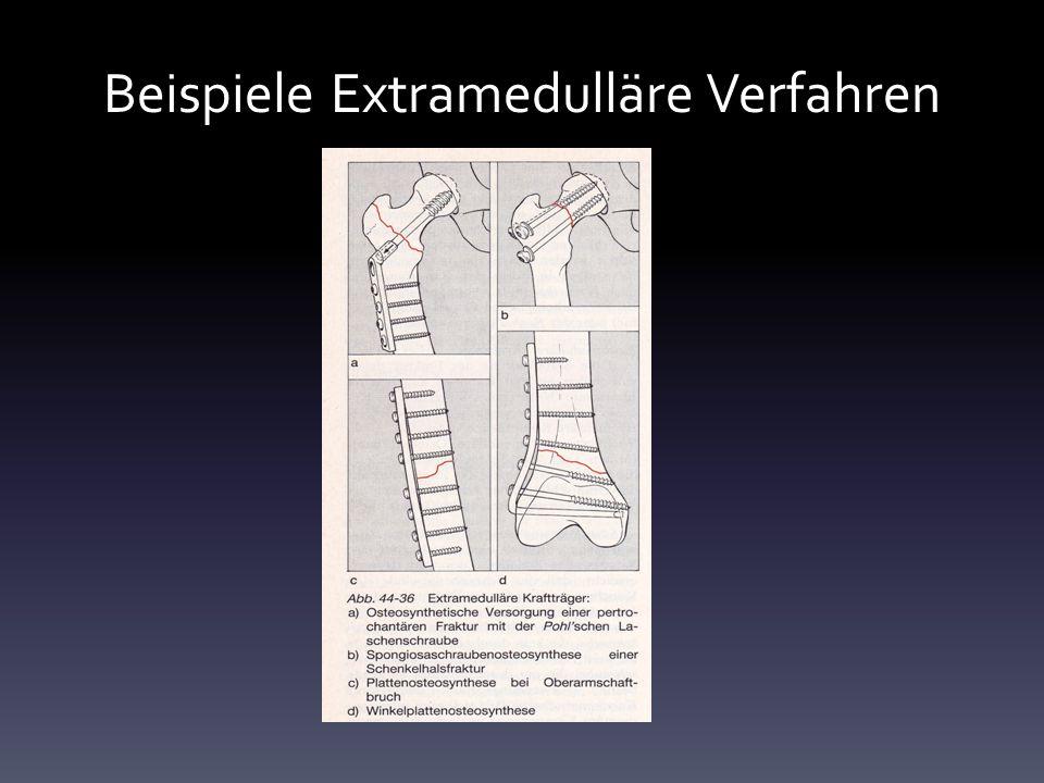 Beispiele Extramedulläre Verfahren