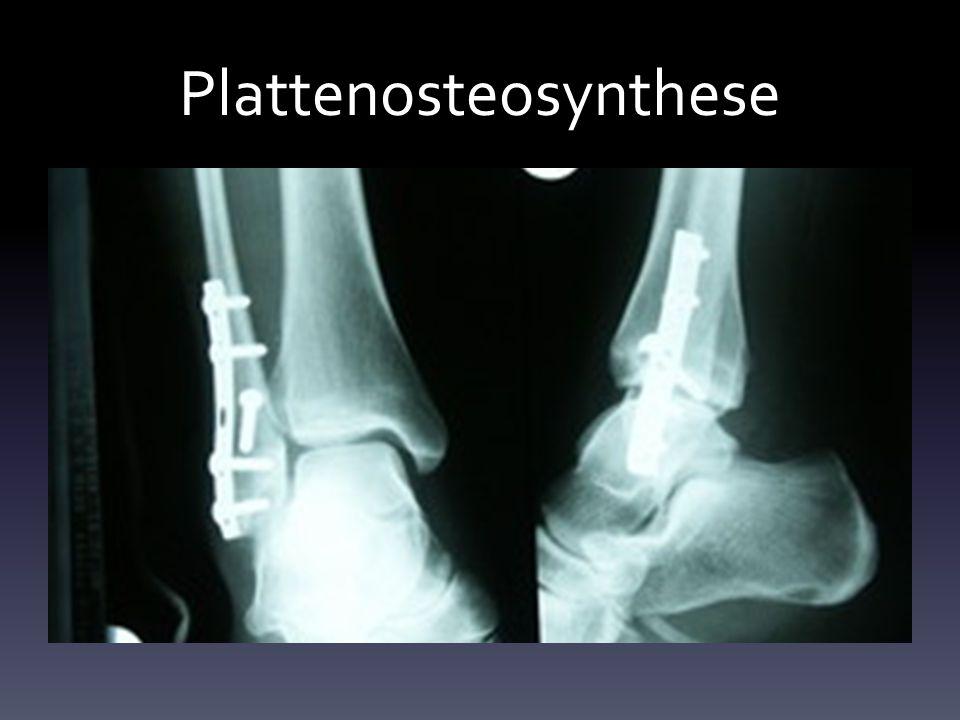 Plattenosteosynthese