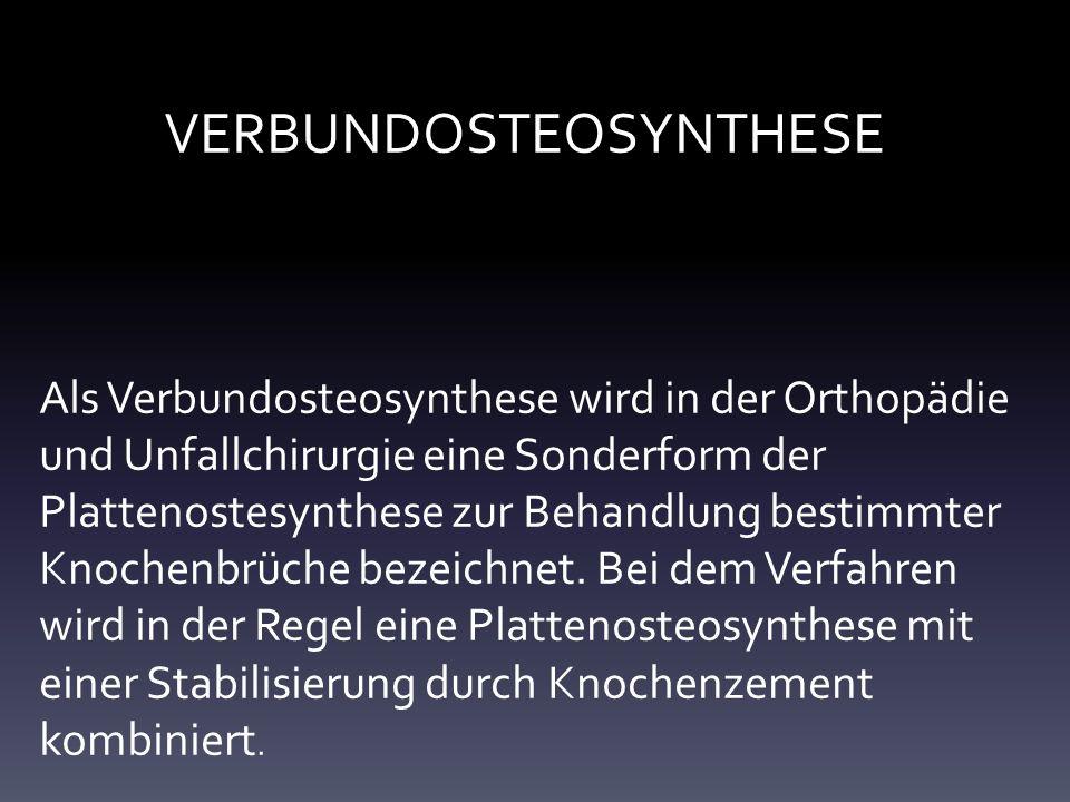 VERBUNDOSTEOSYNTHESE Als Verbundosteosynthese wird in der Orthopädie und Unfallchirurgie eine Sonderform der Plattenostesynthese zur Behandlung bestimmter Knochenbrüche bezeichnet.