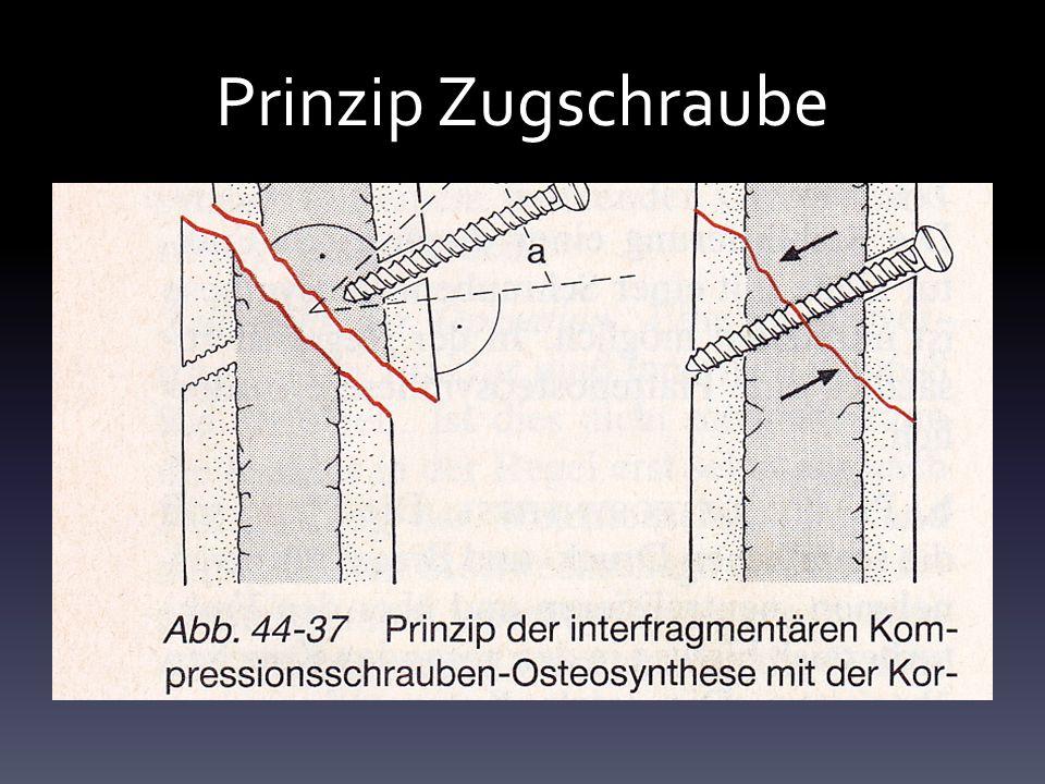 Prinzip Zugschraube