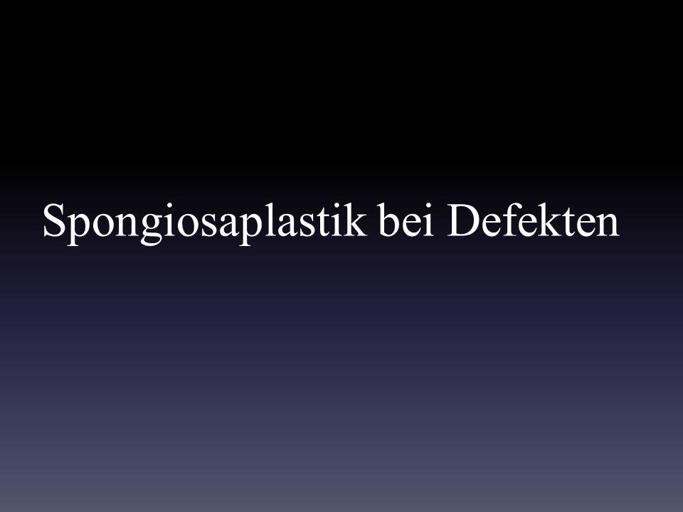 Spongiosaplastik bei Defekten