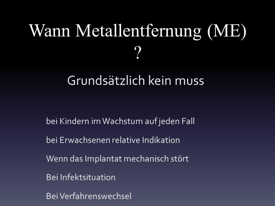 Wann Metallentfernung (ME) .