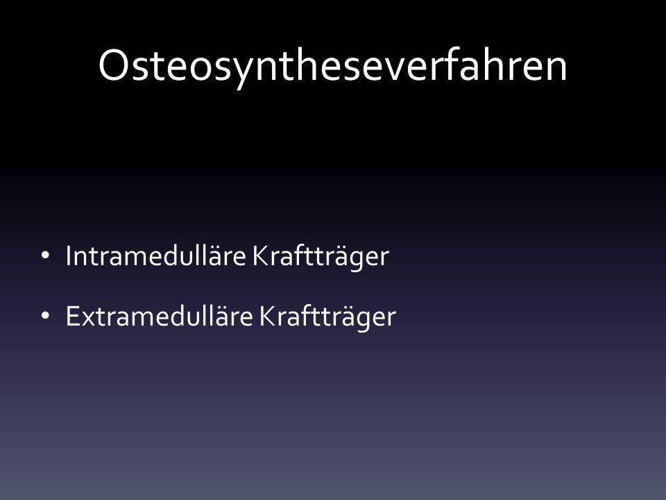 Osteosyntheseverfahren Intramedulläre Kraftträger Extramedulläre Kraftträger
