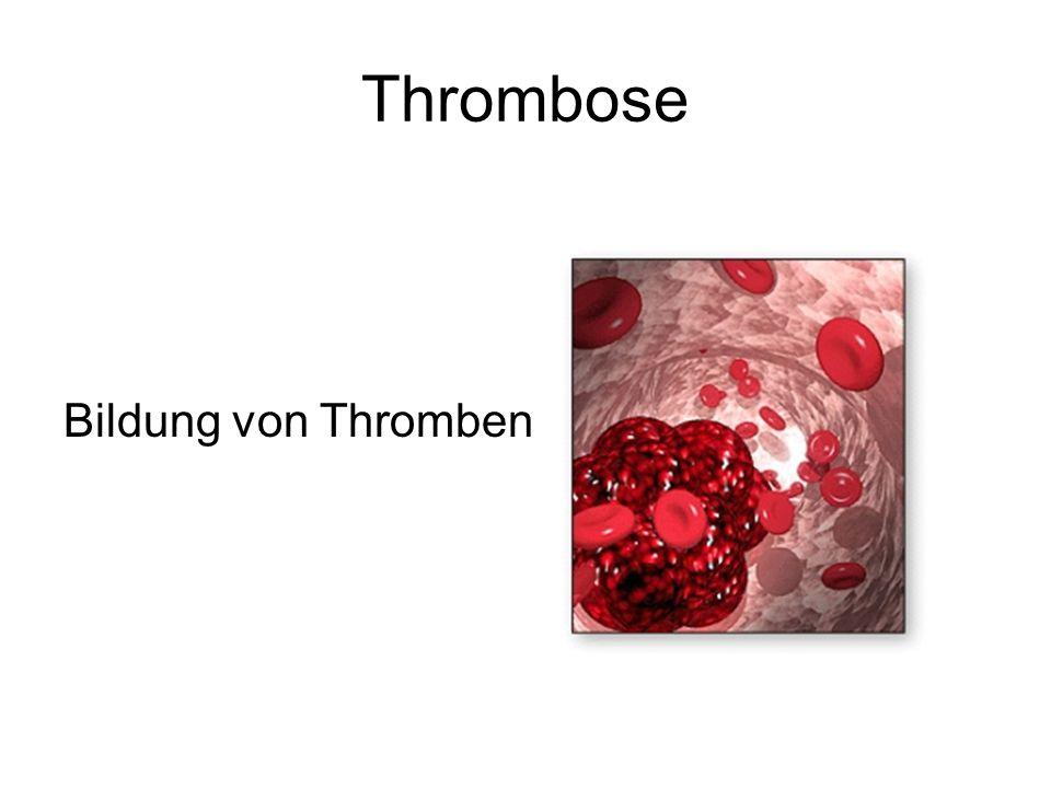 Thrombose Bildung von Thromben