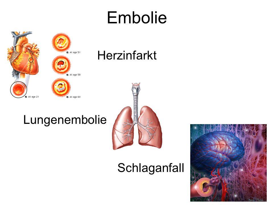 Embolie Herzinfarkt Lungenembolie Schlaganfall