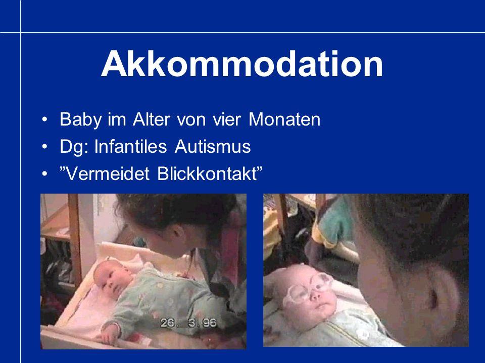Akkommodation Baby im Alter von vier Monaten Dg: Infantiles Autismus Vermeidet Blickkontakt