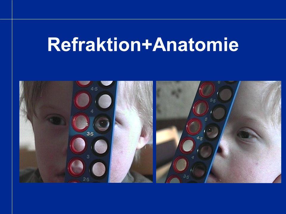 Gesichtsfeld Klinische Tests: - Konfrontationtest - Goldman Perimetrie - Eccentric fixation recording - Flicker und MM-Perimetrie ( Automatische Perimetrie selten) Beobachtung in Therapien, beim Spielen