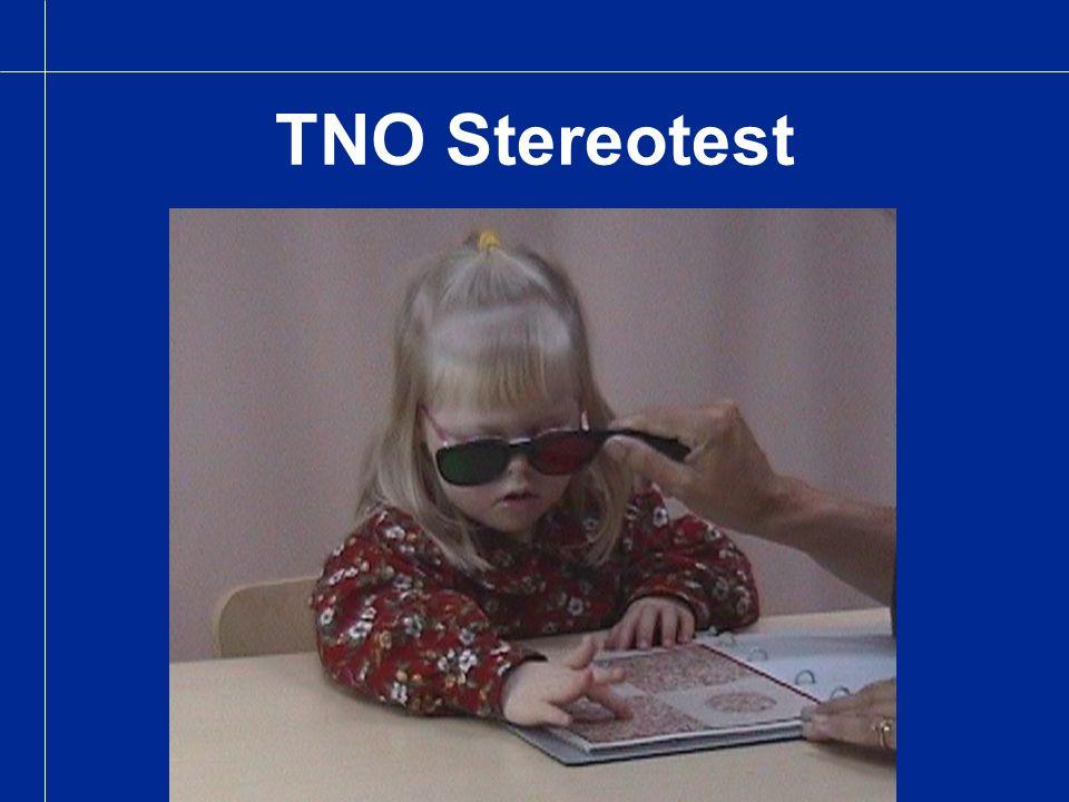 TNO Stereotest